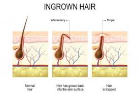 causes of ingrown hair