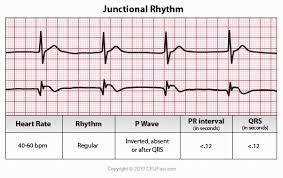 Telemetry Heart Rate Chart Ekg Ecg Interpretation Course Ceufast Nursing Continuing