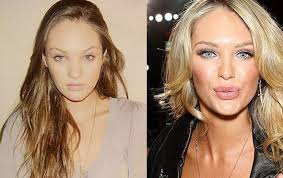 candice swanepoel before and after plastic surgery