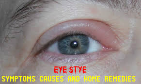 eye stye symptoms causes remes