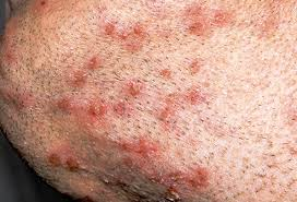 pictures of skin infections