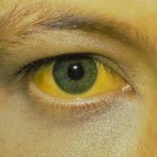 Resultado de imagen de cirrosis biliar primaria