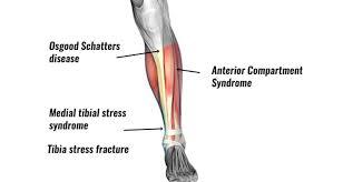 shin pain symptoms causes treatment