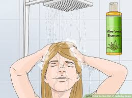 Easy Ways to Get Rid of an Itchy Scalp - wikiHow