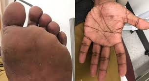Do not miss secondary syphilis: examine the palms and soles | BMJ Case Reports