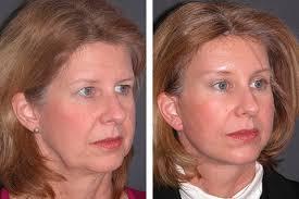 newest facelift procedures
