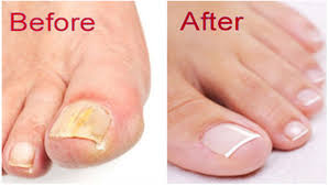 15 best and effective home remes for nail fungus