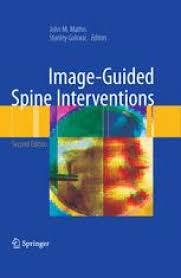 Image-Guided Spine Interventions | SpringerLink