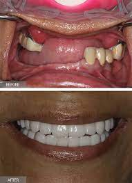full mouth dental implants all on 6