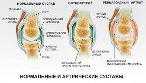 Реферат заболевания коленных суставов заболевания крупных  реферат заболевания коленных суставов