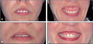 eight components of a balanced smile