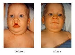 cleft lip repair cleft lip repair and cleft palate repair salt lake city