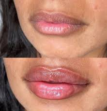 7 lip filler before and after shots you