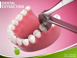 dental extraction teeth may need to be extracted for several reasons including but not limited to severe periodontal disease irreversible damage to the