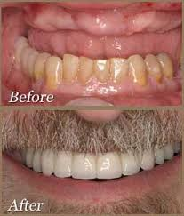 And works through some sample calculations that. Cost Of Full Mouth Of Dental Implants In Los Angeles