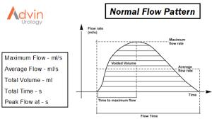 Advin Uroflowmetry System Rs 1 Piece Advin Health Care Id