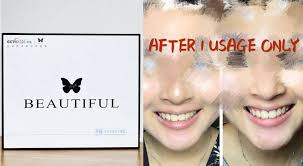 those ing diy teeth whitening products up to s 20 000 fine 12 months jail