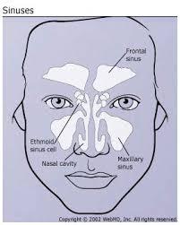 Sinus Headaches Symptoms Causes And Treatment