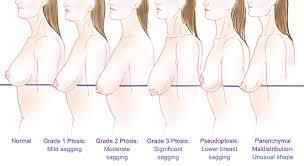 Ptosis Chart Anatomy Of Breast Ptosis Parker Center For Plastic Surgery