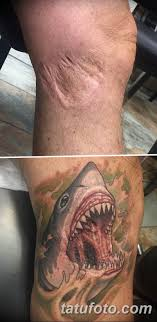 фото тату на шраме 29042019 096 Scar Tattoo Tatufotocom
