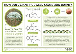 Black Light Burns I Am Where It Takes Me The Chemistry Of Giant Hogweed And How It Causes Skin Burns
