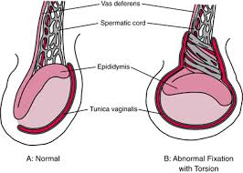 testicular torsion. b: fixation is too high, allowing the testis to rotate transversely and resulting in torsion. testicular torsion c