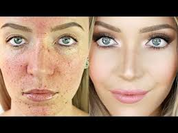 acne coverage foundation routine acne scarring pigmentation stephanie lange