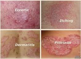 YigaNerJing TBBS ( иганержинг ) против псориазис | дерматит | екзема |  сърбеж | лишей | обриви | гъбички | себореа | хемороиди