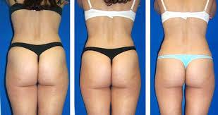 Behandlung cellulite