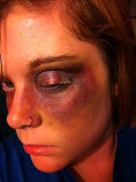 makeup surya ahuja you fake bruise i made using eyeshadow image led make
