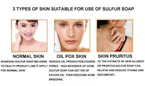 Yiganerjing Sulfur Soap - Effective skin care products
