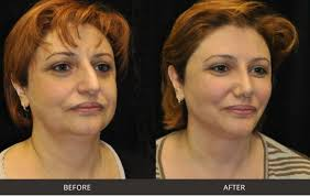 Insurance coverage is the amount of risk or liability covered for an individual or entity by way of insurance services. Best Rhinoplasty Nose Surgery Beverly Hills Los Angeles West Hollywood Ca