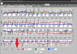 Dental Management Software Compare Recession And Mgj In
