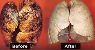 Best natural ways to clean your lungs