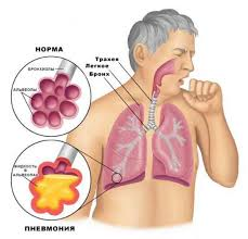 при пневмонии Реабилитация при пневмонии