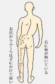 左 腰 の 痛み
