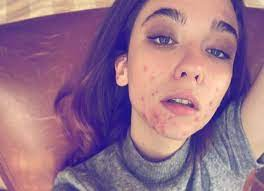 Matilda De Angelis confessa la sua malattia: