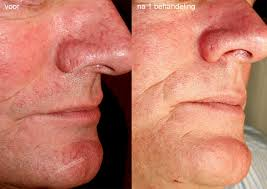 Roodheid gezicht verwijderen