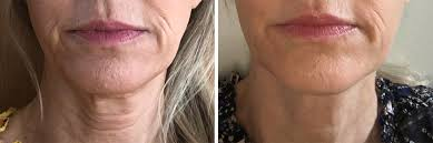 reduce wrinkles around the mouth by
