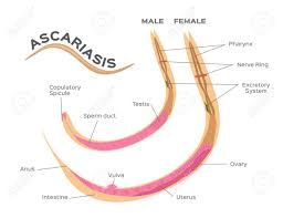 Ascariasis Roundworms Roundworms Parasites Ascariasis Male And Female Worm Infographic