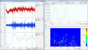 Electroencephalography Eeg Analysis Measurement Adi