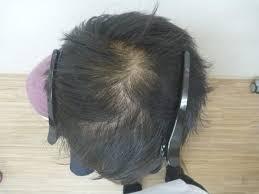 画像で分かるつむじのハゲ薄毛の改善記録