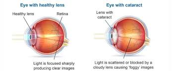 cataracts and cataract surgery a