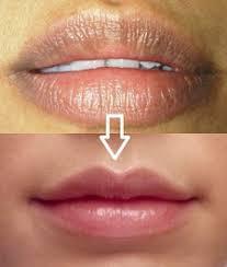 get thin lips