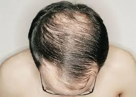 Přirozené Zahuštění Vlasů 10 Tipů Pro Muže Eotazkycz