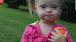 dad s confession down syndrome almost made me leave family cnn marley enjoys having fun and playing toys as she discovers more about her world photos a family s journey down syndrome