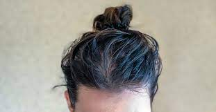 oily scalp causes treatment and