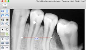 Digital Radiography Digital Radiography Measurement Calibration Macpractice