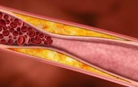 Image result for hypercholesterolemia