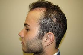 Losing Hair At Young Age